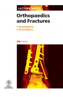 Lecture Notes: Orthopaedics and Fractures, 4th Ed.