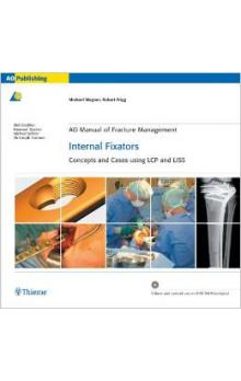 AO Manual of Fracture Management - Internal Fixators