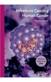Infections Causing Human Cancer