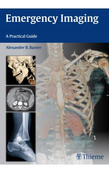 Emergency Imaging : A Practical Guide