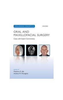 Challenging Concepts in Oral and Maxillofacial Surgery Cases with Expert Commentary