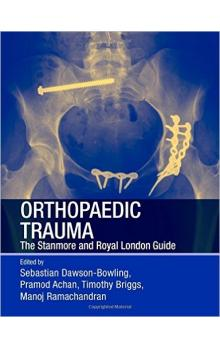 Orthopaedic Trauma : The Stanmore and Royal London Guide