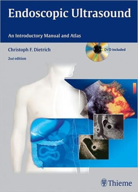 Endoscopic Ultrasound An Introductory Manual and Atlas
