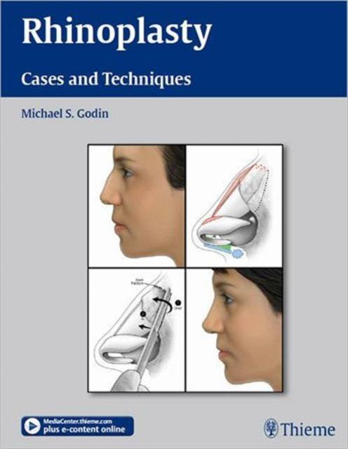 Rhinoplasty Cases and Techniques