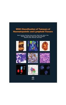 WHO - Classification of Tumours of Haematopoietic and Lymphoid Tissues, 4th rev Ed. Vol. 2