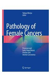 Pathology of Female Cancers Precursor and Early-Stage Breast, Ovarian and Uterine Carcinomas